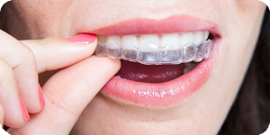 clear braces invisalign san antonio
