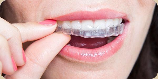 clear braces invisalign san antonio