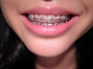 invisalign clear braces san antonio