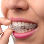 orthodontists san antonio