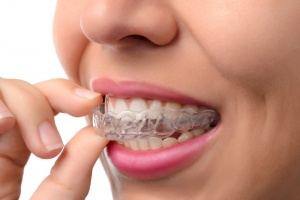 orthodontists san antonio