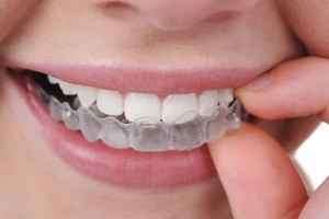 oinvisalign treatment san antonio