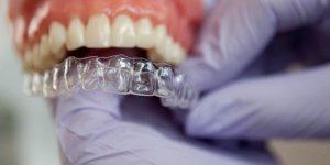 invisalign san antonio Cochran Orthodontics